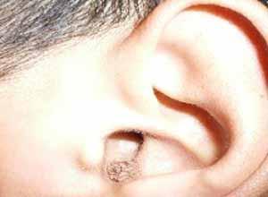 小儿中耳炎