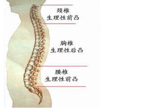 、耳鸣等症状 颈椎病大致有颈椎 骨质增生 、正常曲度变异和颈椎间图片