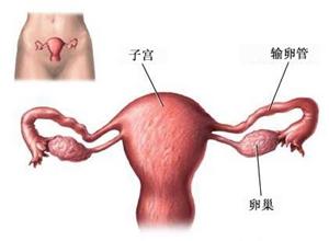 盆腔腹膜炎