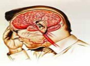 短暂性脑缺血发作