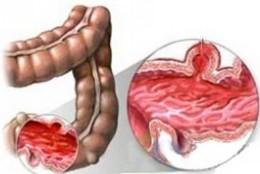 溃疡性肠炎
