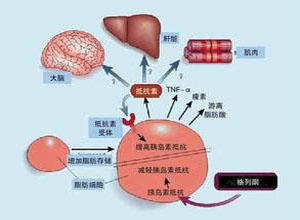 胰岛素抵抗与代谢综合征