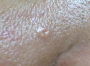 皮脂腺增生