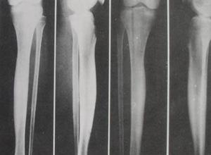 畸形性骨炎
