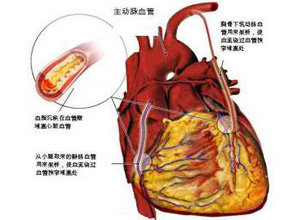 稳定型心绞痛