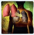 肺功能衰竭