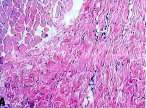 胸壁深部软组织感染