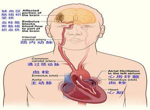 心血管和血栓栓塞综合征