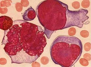 恶性组织细胞病