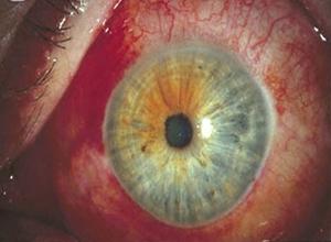 流行性角结膜炎