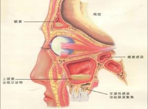 急性化脓性鼻窦炎
