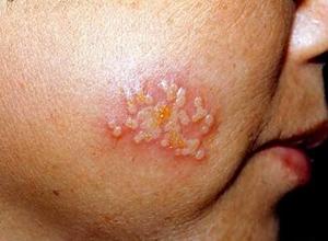 单纯性疱疹