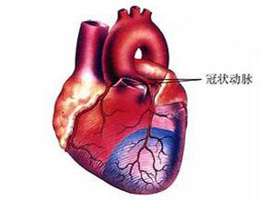 冠状动脉异常起源于肺动脉