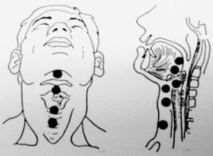 甲状舌管囊肿