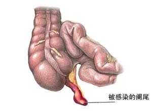 阑尾寄生虫病
