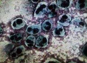 复发性无菌性脑膜炎