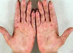 混合性结缔组织病