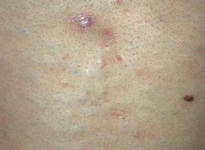 汗孔周围炎及多发性汗腺脓肿
