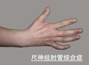 肘管综合征