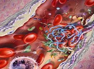 家族性高胆固醇血症