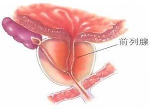 肉芽肿性前列腺炎