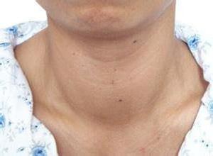 甲状腺功能亢进症的肾损害