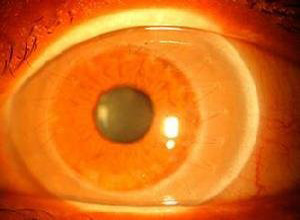 后部多形性角膜营养不良