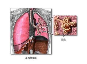 成人呼吸窘迫综合征