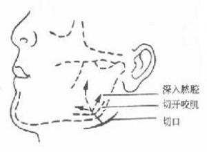 颌周蜂窝织炎