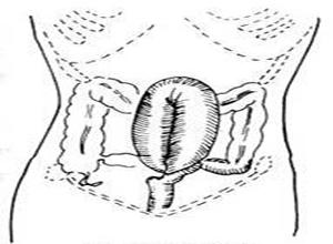 乙状结肠扭转