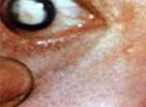 水痘-带状疱疹性葡萄膜炎