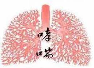 咳嗽性哮喘