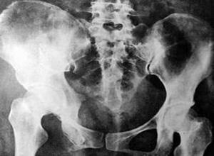 尾骨骨折与脱位