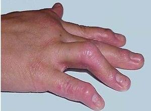 银屑病关节炎