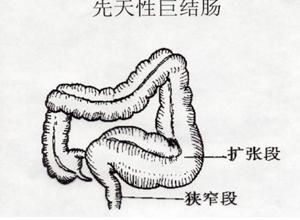 先天性巨结肠