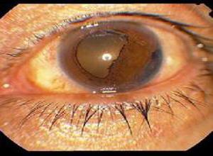 虹膜角膜内皮综合征