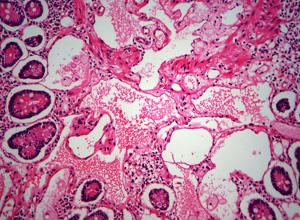 十二指肠白点综合征