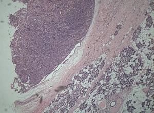 嗜酸性腺瘤