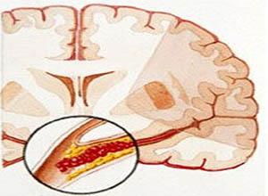 脑血栓形成