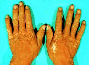 土肥对称性肢端色素沉着症