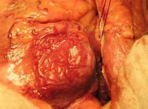 冠状动脉瘤