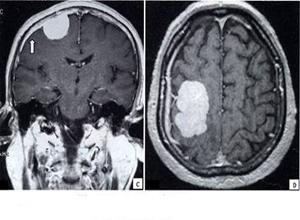 大脑凸面脑膜瘤