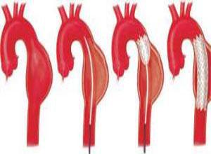 胸主动脉夹层动脉瘤