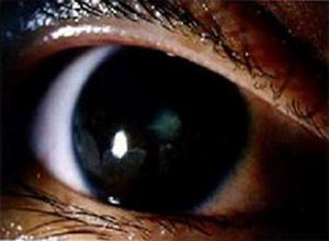 幼年型慢性关节炎及其伴发的葡萄膜炎