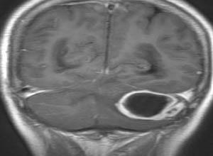 耳源性脑脓肿