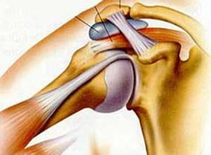 钙化性肌腱炎