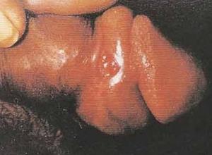 性病性淋巴肉芽肿