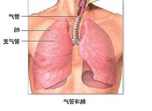 老年人慢性支气管炎