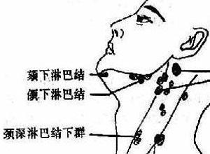 浅表淋巴结肿大权威知识 浅表淋巴结肿大介绍 寻医问药 xywy.com