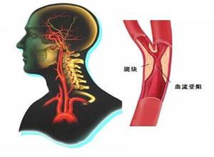 脑动脉硬化症